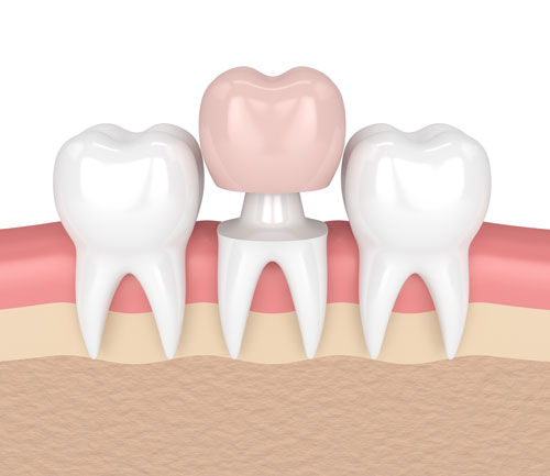 Hollow Crown Asheville Holistic Dentist