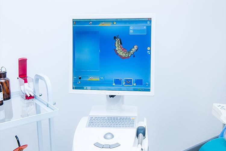 Asheville Dental 3D Printing